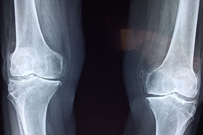 Knee Pain X-Ray